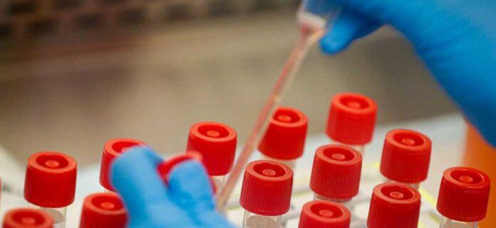 Corona India Update 16,488 new cases of Corona virus, 113 deaths in 24 hours